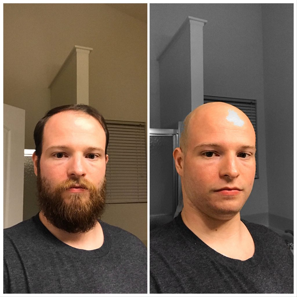 Before and after picture of Matt's shaved head/beard.